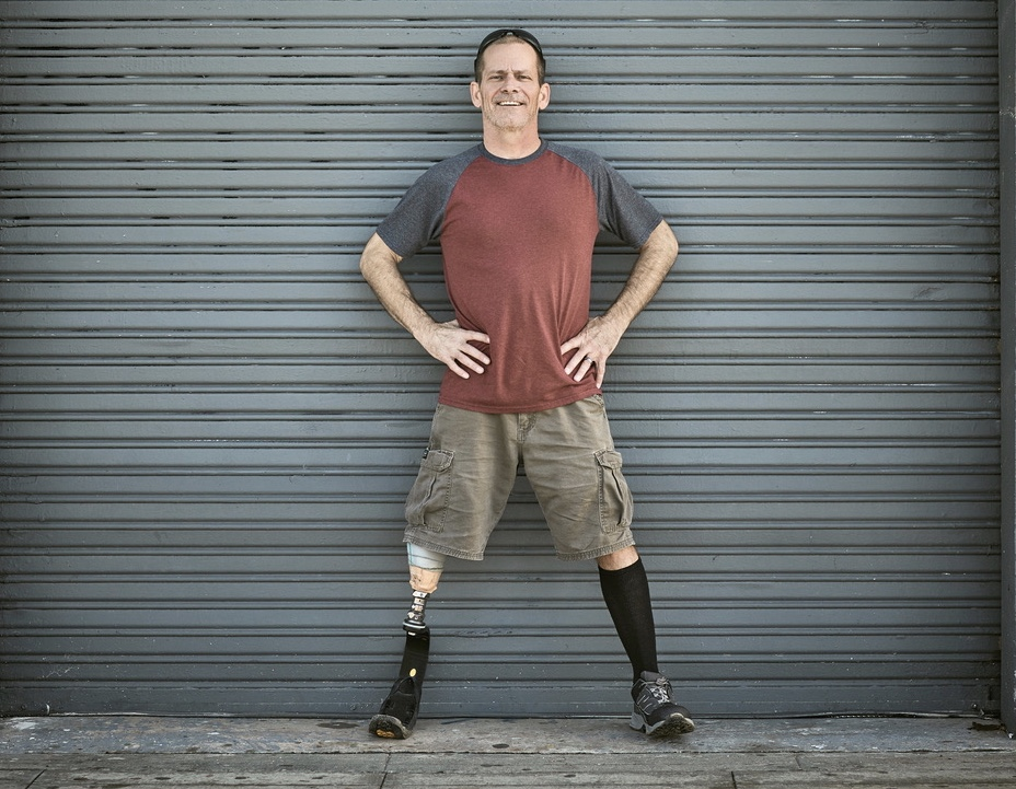 Man Coping with Prosthetic Leg